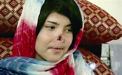 遭割鼻少女 有了真鼻子